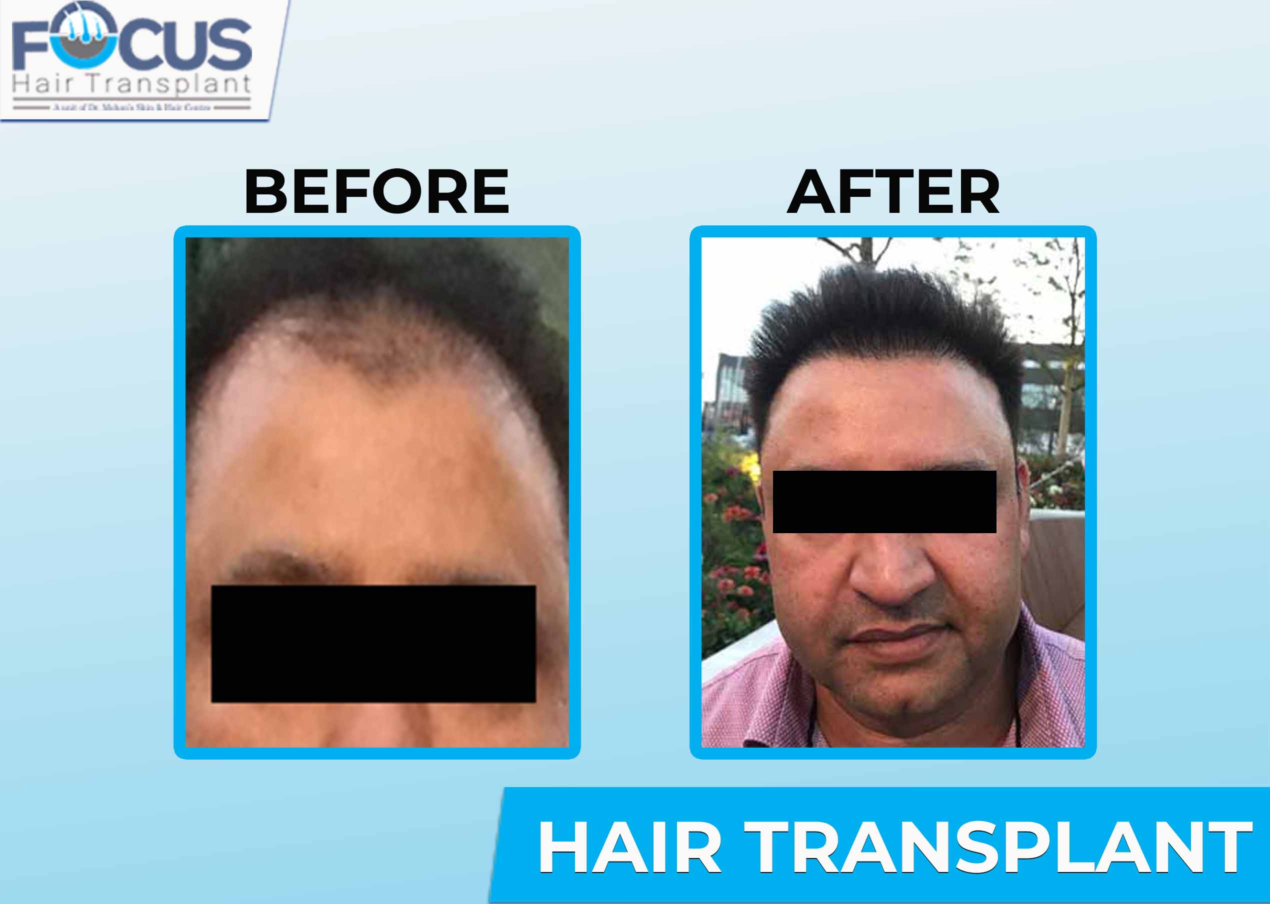 Focus Hair Transplant Centre