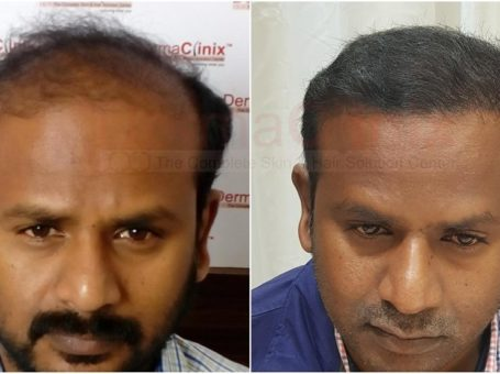 Get Affordable Hair Transplant Surgery in Delhi