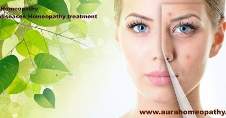 7 Skin diseases Homeopathy treatment, Medicine- Complete Over view