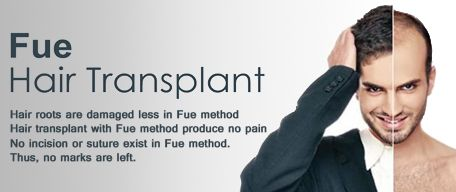 FUE hair transplant in Chandigarh